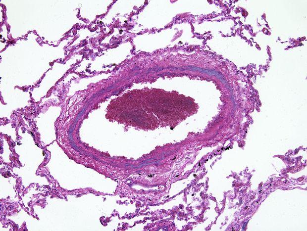 Hypertension pulmonaire : à ne pas négliger ! - Médecine..