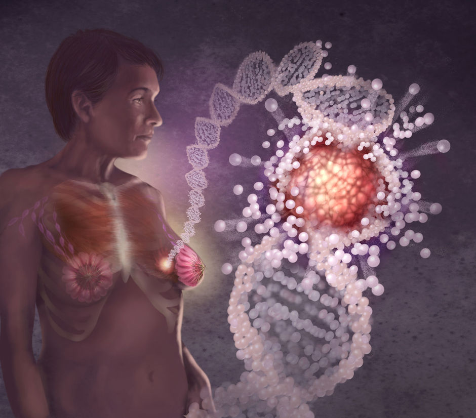 Cancer du sein : Follow-up à long terme de l'Intergroup Exemestane Study