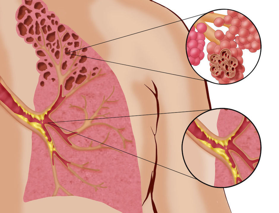 Le roflumilast en cas de BPCO avec bronchite chronique - Pneumologie ...